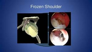 An Owners Guide To Shoulders