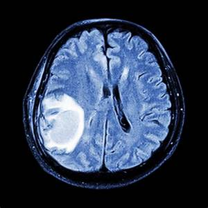 Brain Cancer Treatment Regimens - Cancer Therapy Advisor