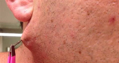 easy   home remedy  remove ingrown hair