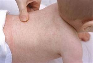 Roseola in Baby (Pictures and Images), Symptoms and ...