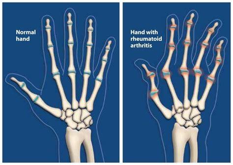 arthritis rheumatoid hand ra symptoms wrist treating