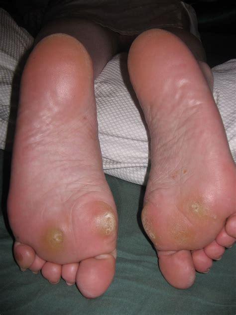 Soins des pieds et services podiatriques Clinique