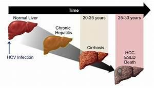 Core Concepts -... Hepatitis C