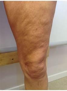 slappe huid benen