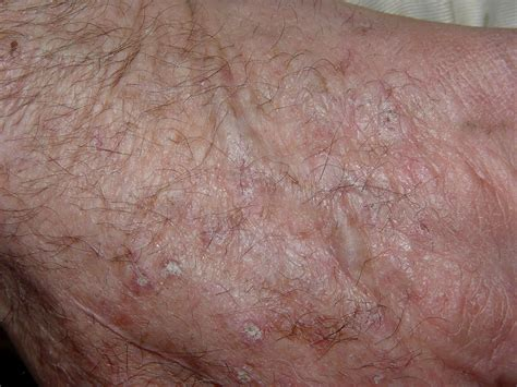 Medical Pictures Info Actinic Keratosis Picture