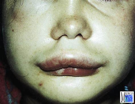 ueberempfindlichkeitsreaktion allergie