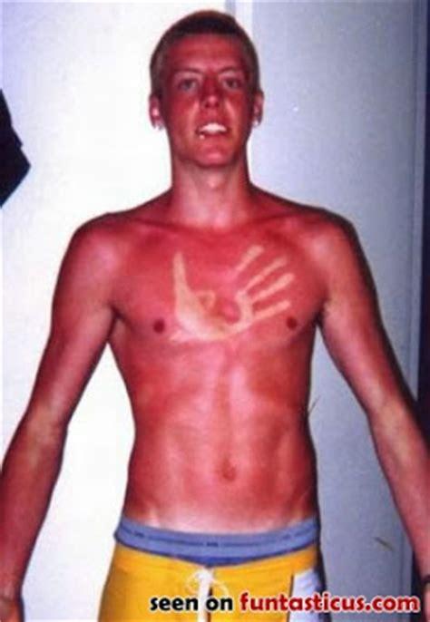 lol funny sun tan
