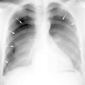 ... . The expiration view accentuates the pneumothorax. (see below Pneumothorax