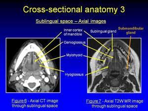 Ecr 2010  C1812  Imaging The Sublingual Space (floor Of
