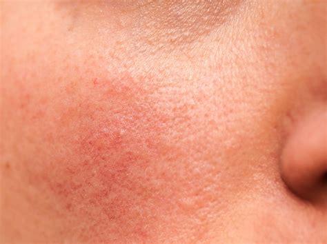 rosacea natürlich behandeln couperose rote wangen nase richtig behandeln