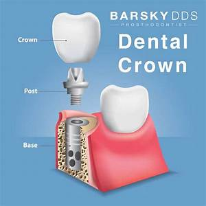 29 Dental Implant Parts Diagram