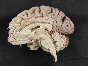 Alien Explorations: Examples of Midsagittal Cutaway brains