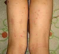 痛く も 痒く も ない 赤い 発疹