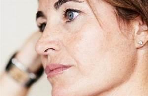 Косметологические процедуры против морщин на лице
