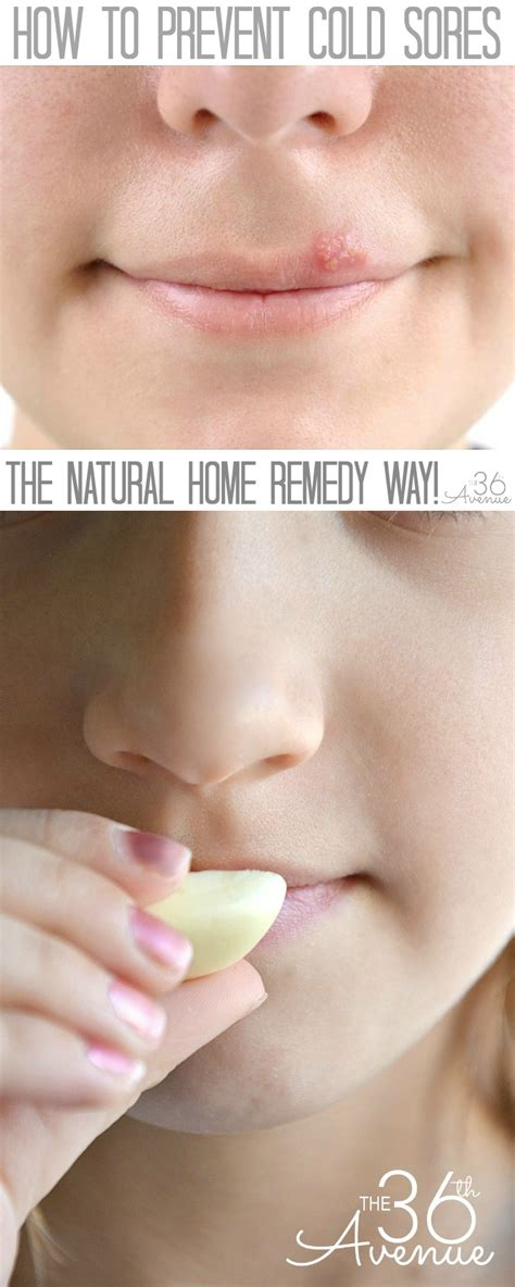 The 36th Avenue  How To Prevent Cold Sores  The 36th Avenue