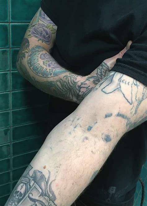 undrawing  tattoos bbc news