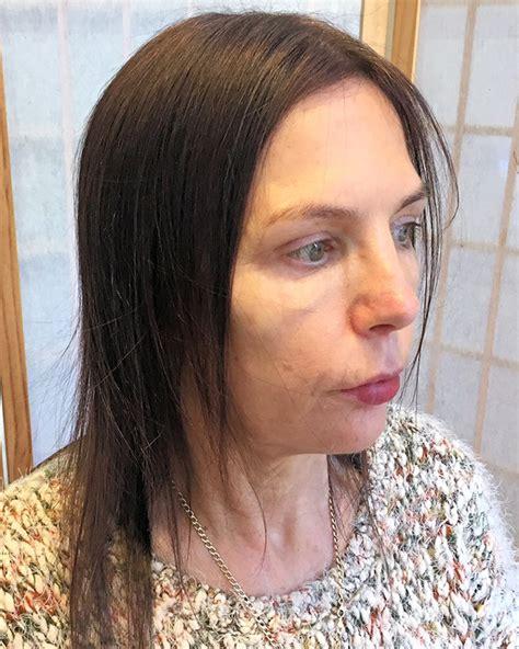 medi connect gallery lucinda ellery hair consultancy usa