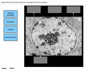 Solved  Label The Transmission Electron Micrograph Of The
