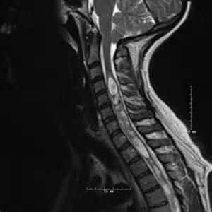 Chiari Malformation Type 1 MRI