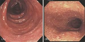 Diffuse Inflammation In The Ascending Colon  A  And