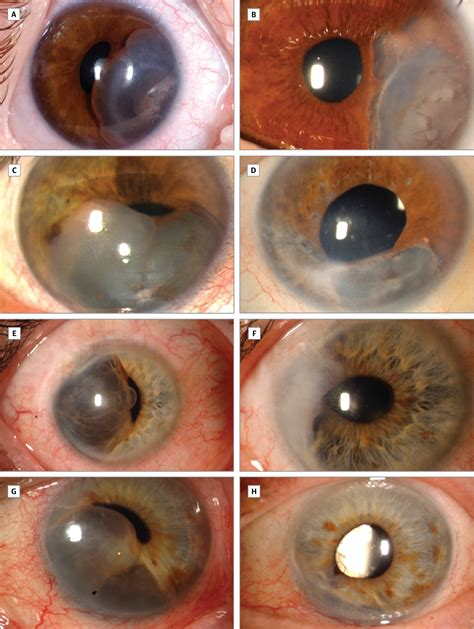 iris stromal cyst management  absolute alcoholinduced