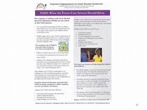 fetal alcohol syndrome essay outline