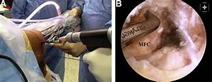 Posterior Cruciate Ligament Reconstruction With Hamstring