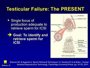 Testicular Failure and Male Infertility - New Insights and ...