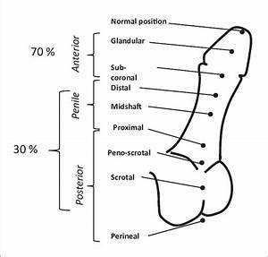 Clinical Classification Of The Severity Of Hypospadias