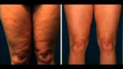 Fast Cellulite Removal, Get Rid Cellulite Before And After. Cosmetology Schools In San Jose Ca. Best Fixed Interest Rates Ampro Computers Inc. New Orleans Std Testing Jewelry Buyers Dallas. Best Statistical Analysis Software. Trade Schools In Detroit Mba Sport Management. Dish Network Number Of Customers. Popcorn Bags With Logo Bim Project Management. Home Telephone Services Providers