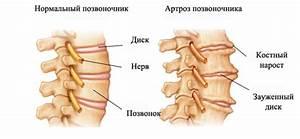 Боли от остеохондроза под нижними ребрами сзади