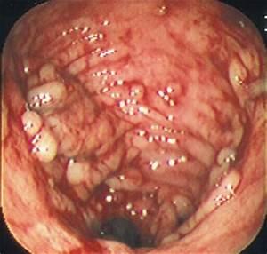 colitis ulcerosa medicatie