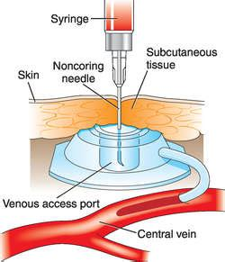 chambre implantable has venous access port definition of venous access port by