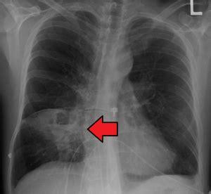 lung abscess wikem