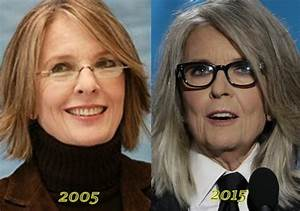 Diane Keaton Plastic Surgery Before And After | Worldnewsinn