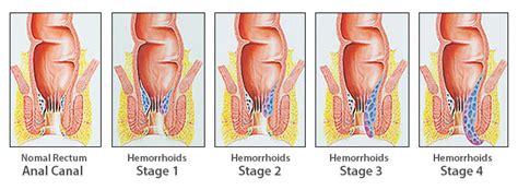 Hemoroizi Interni Produse Si Tratamente Impotriva Hemorizilor Interni 2018