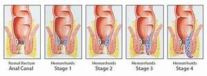 Types Of Hemorrhoids | Hemorrhoid Rescue