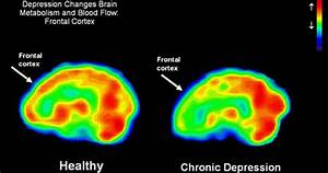 Science Finds New Information On Causes Of Depression