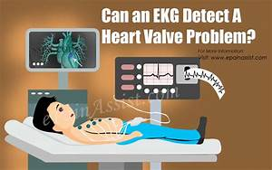 Can An Ekg Detect A Heart Valve Problem