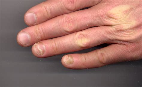 Male Yeast Infection Finger Guide