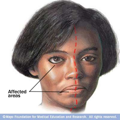 right sided facial nerve palsy