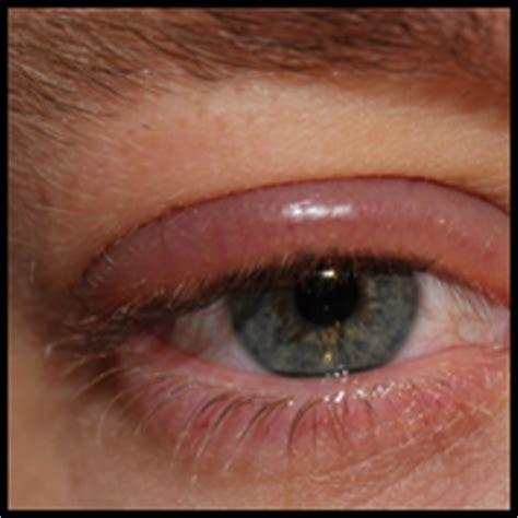 ontstoken oog behandelen