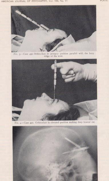 lobotomy procedure  prefrontal lobotomy film