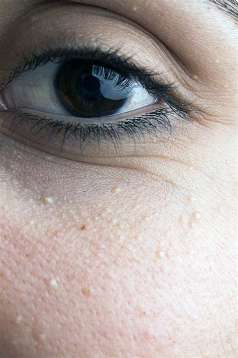Milia under eyes: Causes, diagnosis, and treatment