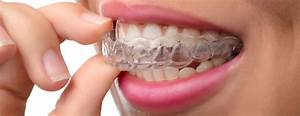 Bruxism  Teeth Grinding   Causes And Treatments