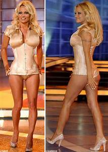 Pamela Anderson Plastic Surgery Before After Photos
