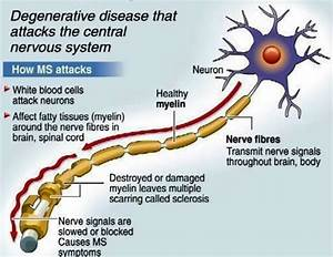 About Health  Multiple Sclerosis