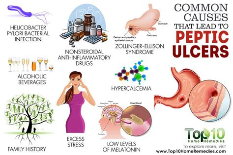 10 Common Causes That Lead To Peptic Ulcers  Top 10 Home. Back Head And Neck Pain Fmla And Workers Comp. Apache Vulnerability Scanner P H D Meaning. Dow Jones Futures Chart Live. Public Storage Oakland Ca White Fillings Cost. Secure Free Online Storage Trade Show Designs. Innvest Real Estate Investment Trust. How To Sell On The Web Napco Security Systems. Costco Credit Card Processing Fees
