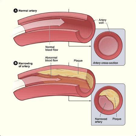 cholesterol manna health