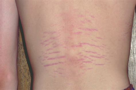 Bartonella Rash  Pictures, Associated Symptoms, Diagnosis. Certificate In Paralegal Studies. Westminster Community Charter School. Average Cost Of Health Care Att Uverse Guide. Water Bottles With Company Logo. Construction Bids Leads University Of El Paso. Cloud Hotel Reservation System. How Much Does Tail Coverage Cost. Faith Christian Church Omaha